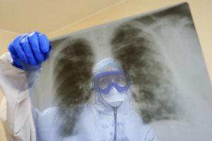 Rusya'da koronavirüsü teşhis etmek için yapay zeka yaratıldı