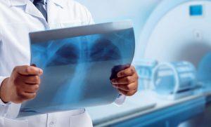 Röntgen Odası Kurşun Levha